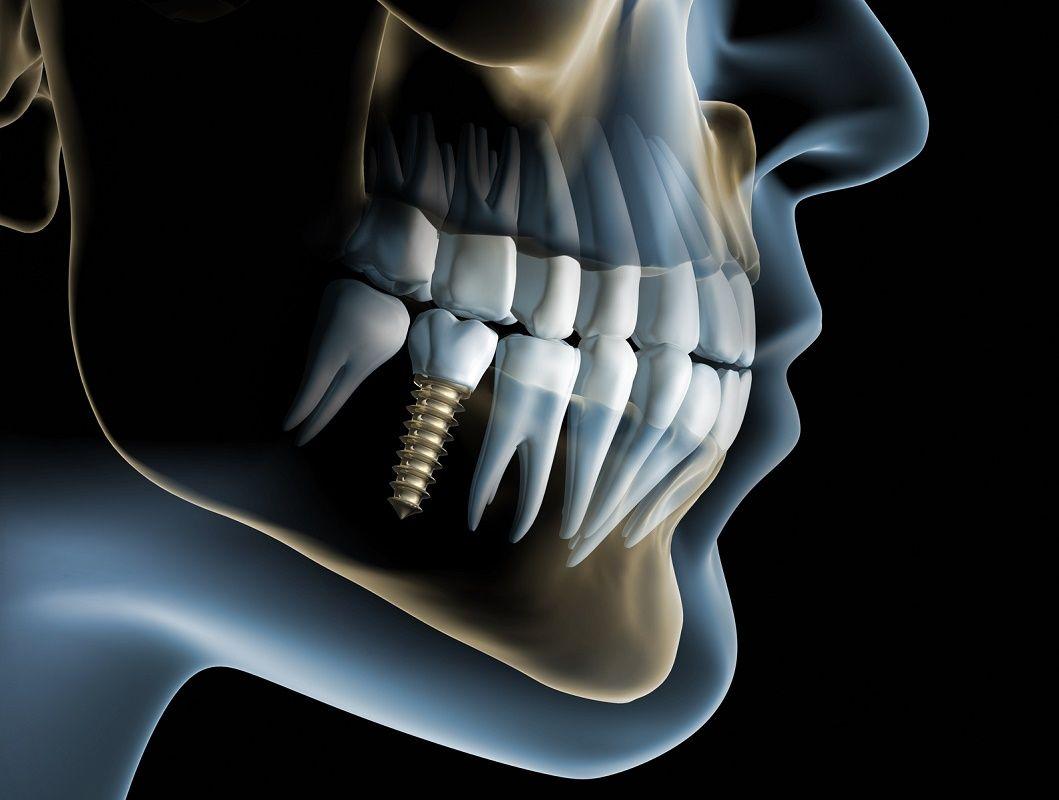 implante dental colmenar viejo